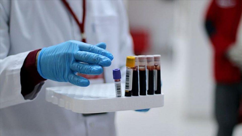 Anticorpul care poate neutraliza coronavirusul, descoperit de cercetătorii israelieni. De ce este superior